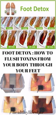 Foot Detox can be an effective and easy way to help cleanse your body of toxins that build up over time — without the sacrifice of cutting certain foods out of your diet. Furthermore, foot detoxification is considered by many to be one of the safest forms of detoxification. There are many types of foot …