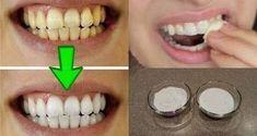 Découvrez la meilleure combinaison de deux ingrédients naturels pour des dents plus blanches !Découvrez la meilleure combinaison de deux ingrédients naturels pour des dents plus blanches !