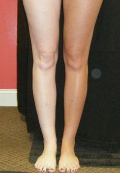 Faux Glow spray tan before and after photo. Best Tanning Lotion, Self Tanning Lotions, Tanning Tips, Tanning Cream, Fake Bake Spray Tan, Tan Before And After, Pro Tan, Exfoliating Gloves, Airbrush Tanning