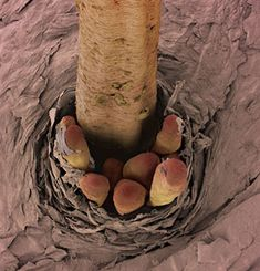 eyelash (with mites living in follicle)