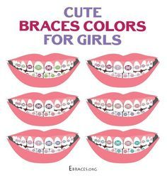 braces colors for girls                                                                                                                                                                                 More