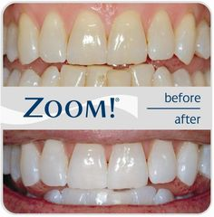 zoom teeth whitening before and after http://getfreecharcoaltoothpaste.tumblr.com