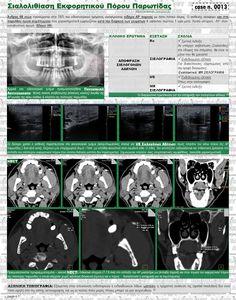 Case n. 0013 - Σιαλολιθίαση Εκφορητικού Πόρου Παρωτίδας (Stensen)
