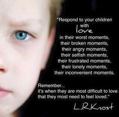 Think back to your own scars and how they were formed. Peaceful Parenting, Gentle Parenting, Parenting Quotes, Parenting Advice, Kids And Parenting, Mindful Parenting, Conscious Parenting, Love My Kids, Attachment Parenting