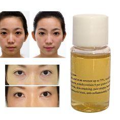Todo efecto de Ojo Aceite Esencial 10 ml Aceites de Masaje Ojeras Hinchazón Debajo de Los Ojos Se Desvanecen Las Arrugas Ojos Masaje aceite 2 unids
