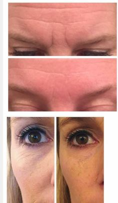 Katie Roof   In The Glow: Arbonne Genius Ultra Device before & afters