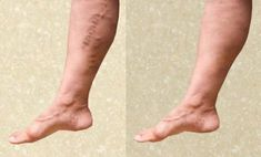 How to prevent varicose veins? Get rid of varicose veins. Cures for varicose veins naturally. Treat varicose veins at home fast. Ways to heal varicose veins.