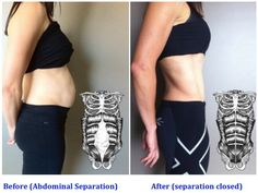 Before and after pictures of mom belly diastasis