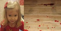 Toddler Turns Blue and Throws Up Blood, Dies For Frighteningly Simple Reason ...