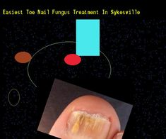 Easiest toe nail fungus treatment in sykesville - Nail Fungus Remedy. You have nothing to lose! Visit Site Now