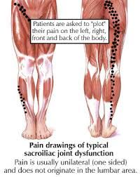 Image result for sacroiliac joint pain
