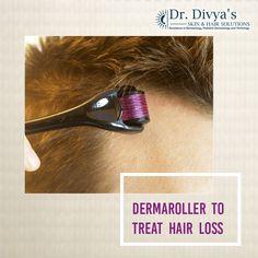 Dermaroller increases blood circulation on the scalp and enhances hair growth factors. #dermaroller #hairloss