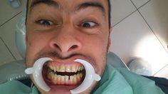 Quanto è riuscito a spalancare la bocca questo paziente?