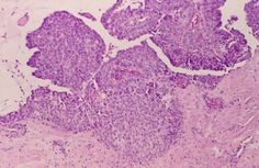 Nipple adenoma