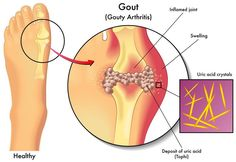 How To Remove Uric Acid Crystallization In Joints (To Help Gout And Joint Pain):  ►► http://www.healthinfocus.net/blog/how-to-remove-uric-acid-crystallization-in-joints/  Did you know that another cause of arthritis is a problem with the production of uric acid crystals?