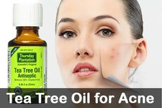 Tea tree oil for acne. How to use tea tree oil for acne treatment? Tea tree oil uses. How to apply tea tree oil on acne? Benefits of tea tree oil for acne. Tea Tree Oil Uses, Tea Tree Oil For Acne, Natural Acne Remedies, Home Remedies For Acne, Tea Tree Oil Antiseptic, Oils For Dandruff, Acne Scar Removal, Be Natural, Essential Oils