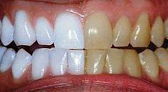 Unbelievable Tips: He mixed 2 ingredients and passed .- Dicas Inacreditáveis: Ele misturou 2 ingredientes e passou nos dentes. O… Unbelievable Tips: He mixed 2 ingredients and brushed his teeth. Coconut Oil For Teeth, Coconut Oil Pulling, Coconut Oil Uses, Teeth Whitening Remedies, Natural Teeth Whitening, Tumeric For Teeth Whitening, Natural Toothpaste, Skin Whitening, Gum Health