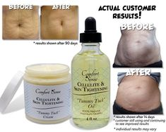 Cellulite Skin Tightening Tummy Tuck Oil for | Etsy Oil For Stretch Marks, Stretch Mark Cream, Be Natural, Natural Facial, Tummy Tucks, Sagging Skin, Lemon Essential Oils, Skin Elasticity, Body Treatments