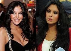 Cosmetic Surgery World. Plastic Surgery Tips For Anyone Considering A Procedure. Cosmetic surgery isn't as frightening, once you're informed. Kobe Bryant And Wife, Kobe Bryant Family, Dez Bryant, Kobe Bryant Nba, Kobi Bryant, Vanessa Simmons, Plastic Surgery Gone Wrong, Kobe Bryant Pictures, Vanessa Bryant