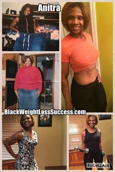 "Weight Loss Surgery was not a ""magic pill"" for weight loss as Anitra thought it might be, but she made lifestyle changes to see lasting weight loss."