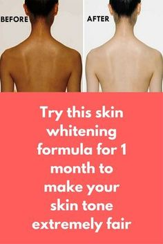Try this skin whitening formula for 1 month to make your skin tone extremely fair A Magical Formula to Whiten Your Full Body and Face. Whiten Your Body and Face Permanently, Get Instant Result. This Full Body whitening remedy works 100%, so must tryy this To make this amazing full body whitening mask you will need Gram flour Sandalwood powder Turmeric powder Lemon juice Yogurt Raw milk/Rose water Preparation In …