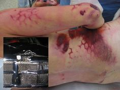 Since the physicians have been integral in recognizing patterns of injuries that result from motor vehicle accident and have suggested design changes that, once adapted, led to fewer injuries and fatalities. Forensic Science, Medical Science, Trauma, Medical Photos, Surgical Tech, Foto Real, Special Effects Makeup, Forensics, The Victim