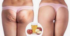 Combattere la cellulite con l'aceto di mele Cellulite Exercises, Cellulite Remedies, Anti Cellulite, Kettlebell, Squats, Natural Remedies, Fashion Beauty, Beauty Hacks, Wellness
