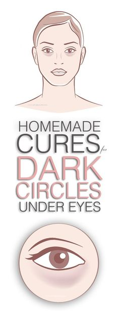 Now easily erase severe dark circles under eyes by applying natural home remedies and make you feel more young and pretty.