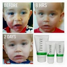 Look at this sweetheart! I'm so happy Rodan + Fields SOOTHE Regimen helped his irritated skin. If you or a family member has sensitive skin, I can help! SOOTHE also helps eczema, psoriasis, rosacea, sunburn, bug bites, and so much more! Message me:)