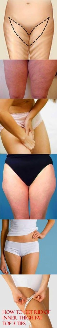 How to Get Rid of Inner Thigh Fat