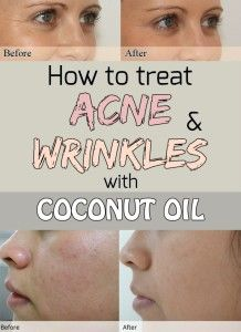 Learn how to treat acne and wrinkles with coconut oil.