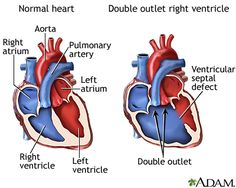 This is Katie -Double outlet right ventricle