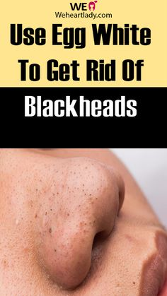 Use Egg White To Get Rid Of Blackheads  # #Use #Egg #Blackheads #Skin #acne #beauty Face Mask For Blackheads, Get Rid Of Blackheads, Blackhead Mask, Blackhead Remover, How To Get Rid, How To Remove, Acne Spots, Remove Acne, Egg Whites