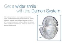 Amazing results with the Damon System!