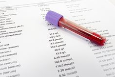 Understanding Your Blood Tests: Kidney Health Serum, Blood Test Results, Thyroid Medication, Check Up, Kidney Health, First Blog Post, Medical Information, Lifestyle, Weights