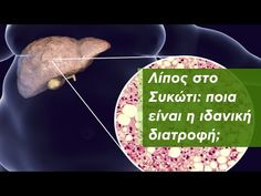 Λίπος στο Συκώτι: Ιδανική Διατροφή - YouTube Cheese, Health, Natural, Food, Youtube, Health Care, Eten, Healthy, Nature
