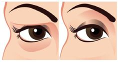 Use egg white to tighten droopy eyes.