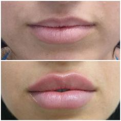 We could get this type of change to last for a decade by way of fine finesse plastic surgery www. Facial Fillers, Botox Fillers, Lip Fillers, Dermal Fillers Lips, Hyaluron Filler, Lip Types, Botox Lips, Facial Aesthetics, Beauty