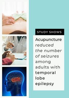 Acupuncture helps reduce frequency of seizure for patients with temporal lobe epilepsy according to studies. #AcupunctureWorks #Acupuncturebenefits #tcm #traditionalchinesemedicine