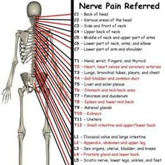 Nerve pain Occupational Therapy, Physical Therapy, Physical Pain, Massage Pictures, Referred Pain, Spine Health, Tips & Tricks, Nerve Pain, Anatomy And Physiology