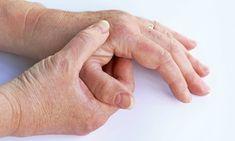 ARTROSE: En norsk studie viser at det er dårlig samsvar mellom behandlingen forskning viser at virker og behandlingen pasienter faktisk får. FOTO: NTB Scanpix 5 Am Tag, Gout Flare Up, Gout Recipes, How To Cure Gout, Le Psoriasis, Waste Removal, Uric Acid