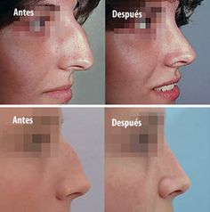 Nose Plastic Surgery, Nose Surgery, Nose Fillers, Kim Kardashian Before, Bleach Uses, Rhinoplasty Before And After, Teeth Bleaching, Operation, Lip Injections