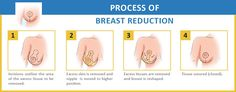 Breast Reduction in India At Affordable Prices - How Safe and effective is this Surgery?