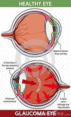 Poster with comparative information in how to identify a healthy eye and other with glaucoma disease.