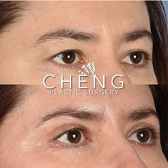⭐️Our patient came in with the following goals⭐️ 👉🏽Decreasing the amount of lax skin on her upper eye✔️ 👉🏽Improving upon sagging above her upper eye✔️ 👉🏽Repositioning fat pads of her under eye✔️ Eyelid Surgery, Plastic Surgery, Fat, Goals, Eyes, Cat Eyes