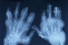 Link found between osteoarthritis and fibromyalgia pain