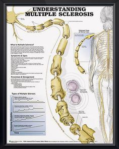 Multiple Sclerosis anatomy poster details signs, symptoms, prevention and management techniques for various types of MS. - from $10.69