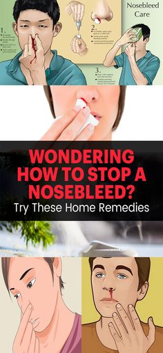 How to Stop a Nosebleed: 4 Home Remedies!