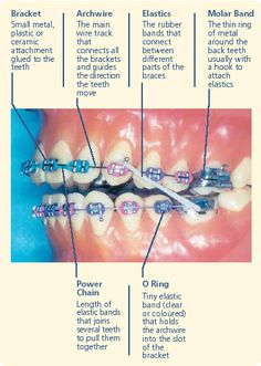 How to eat a sandwich with braces dental braces in bangalore how to eat a sandwich with braces dental braces in bangalore pinterest dental braces and dental solutioingenieria Choice Image