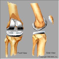 total knee replacement | Clinical trials for Total Knee Replacement are being to conducted to ...
